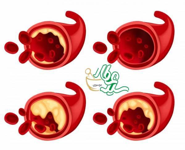عرق فراسیون برای کاهش چربی خون