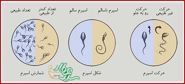 اختلالات اسپرم